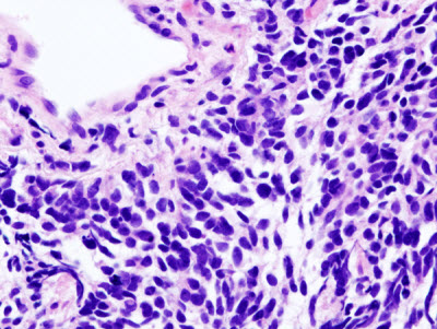 Small-cell lung carcinoma