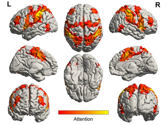 Songs Alleviate Anxiety, Activate Brain Regions of Alzheimer's Sufferers
