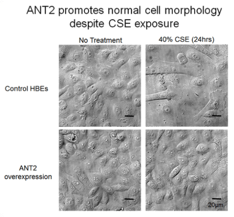ANT2 maintains normal cell morphology of human bronchial epithelial cells after 40% cigarette smoke extract after 24 hours
