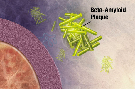 formation of plaques in Alzheimer's disease
