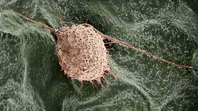 A human fibroblast cell finds a home on a lilac leaf