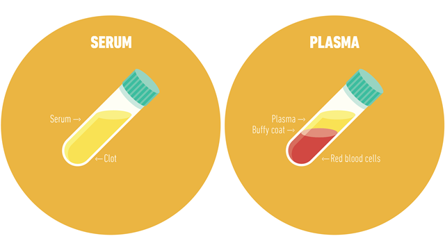 A diagram explaining what a centrifuge is used for using a picture of serum and plasma